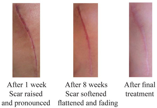 a scar that has been healed