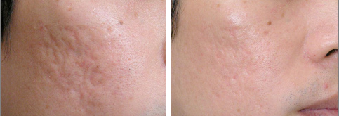 acne-scar-treatment