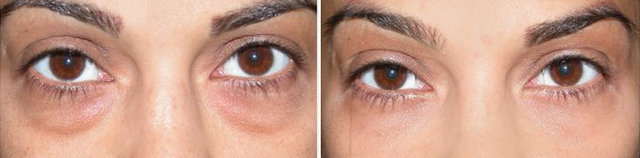 under-eye-dark-circles