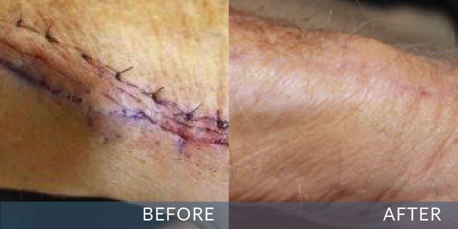 Before And After Pictures Scar Heal South Africa